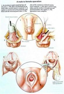Phẫu thuật chuyển đổi giới tính tại piyavate hospital