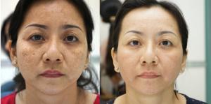 CHAMOMILE: Vua khử nám, tàn nhang, dưỡng trắng da hiệu quả