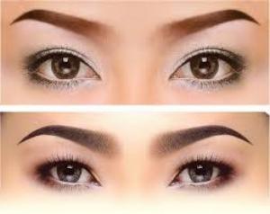 Trị thâm quầng mắt, xóa bọng mắt bằng công nghệ RF kết hợp mỹ phẩm đặc biệt riêng cho mắt