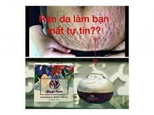 Kem ngừa  rạn dưỡng da