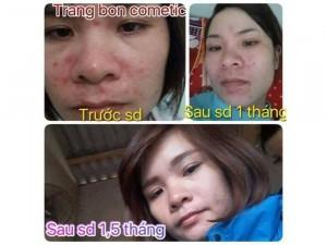 Kem Trị Mụn Trang Bon