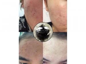 Ashi acnes