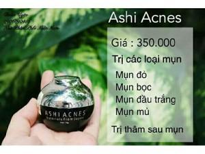 Ashi _ ACNES