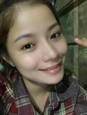 Face collagen Hỗ trợ trị nám tàn nhang