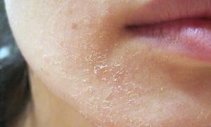 Sản phẩm hỗ trợ giảm nấm da