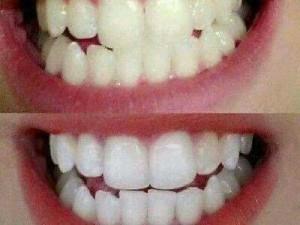 Bột trắng răng