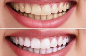 Bột trắng răng Mộc Nha: Làm sạch các mảng bám, do đồ ăn để lại, chống hình thành cao răng.