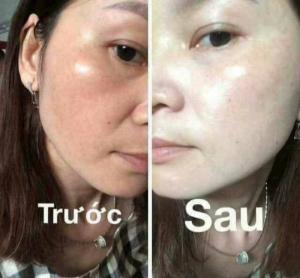 Mặt nạ ngủ- Mask botox