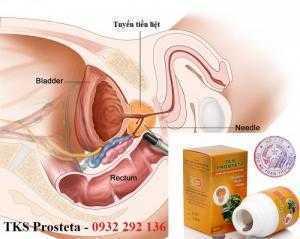 TKS Prosteta liệu pháp hỗ trợ cải thiện phì đại tiền liệt tuyến