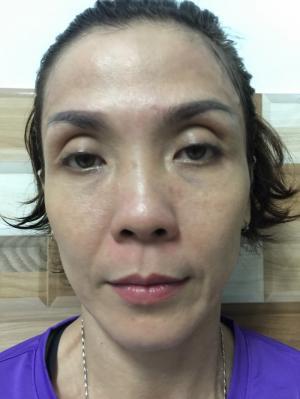 Chương trình chăm sóc da nâng cơ mặt