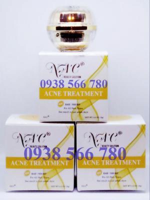 Kem trị mụn NAC ACNE TREATMENT an toàn và hiệu quả