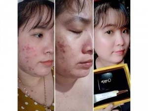 Combo đặc trị mụn Queenie skin