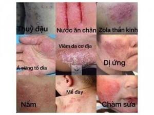 Thuốc chữa bệnh ngoài da