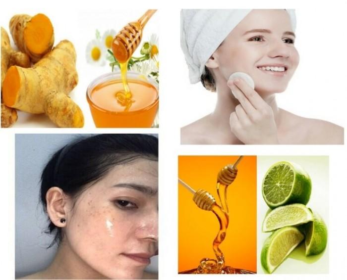 Kem trị mụn, mỹ phẩm hỗ trợ trị mụn, cách trị mụn hiệu quả cho da khô, da dầu, da nhờn, da nhạy cảm